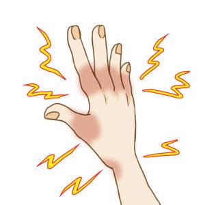 手が痛い!